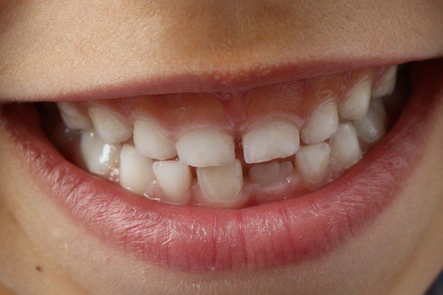 зубы-сонник